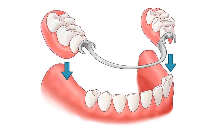 Prótesis parcial
