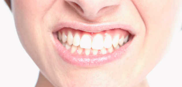 malos hábitos dentales