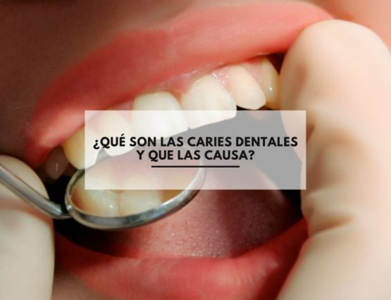 ¿Qué son las caries dentales y que las causa?