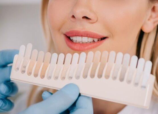 decolocarión de los dientes